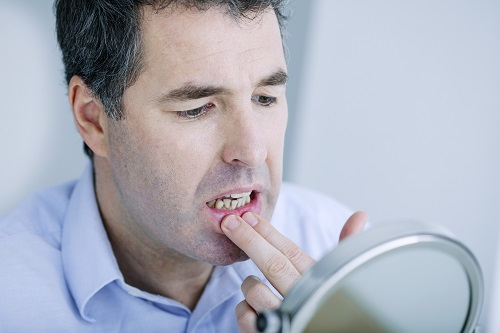 man with irritated gums